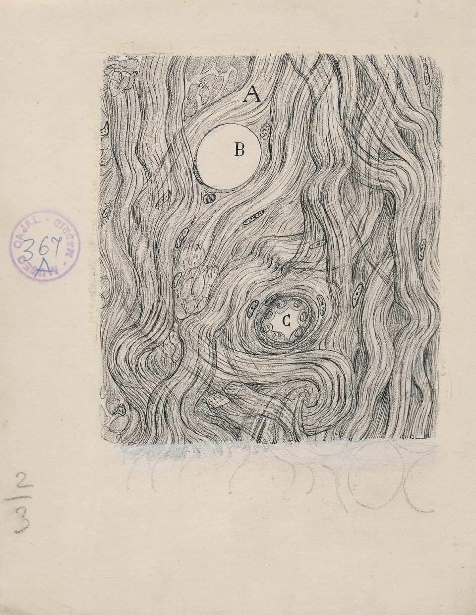 4_Cajal_TumorCells_1890-1-960x1240